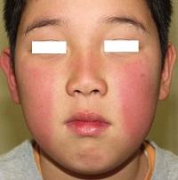 りんご病と言うだけあって、両頬に紅い発疹が出ることがりんご病の最大の特徴で、その症状でりんご病だと気づく人も多くいます。ウイルスに感染して7日~20日ほど立つ